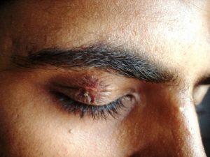 Opryszczka narządu wzroku