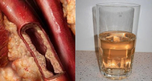 napój nazatkane tętnice