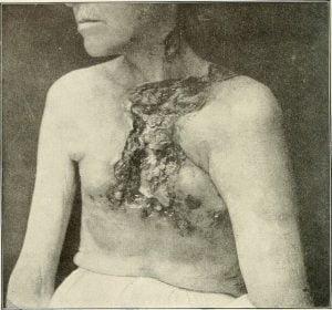Gruźlica skóry