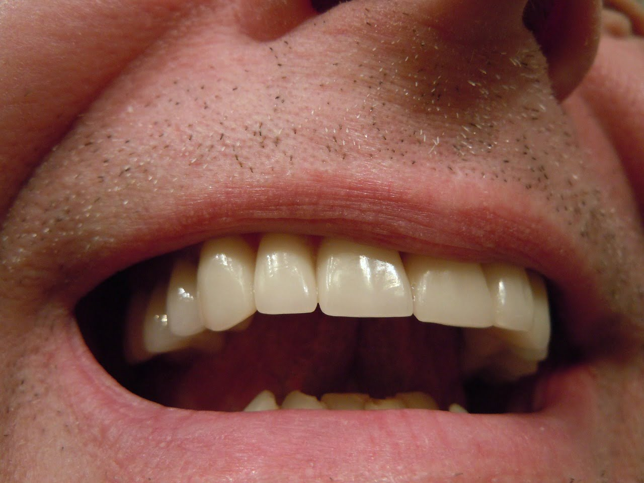 Zespol Pieczenia Jamy Ustnej Przyczyny Objawy Leczenie